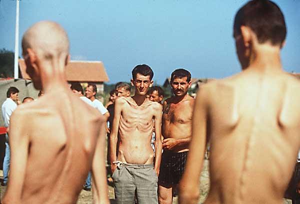 Bosnian prisoners trnopolje bosnia 1992